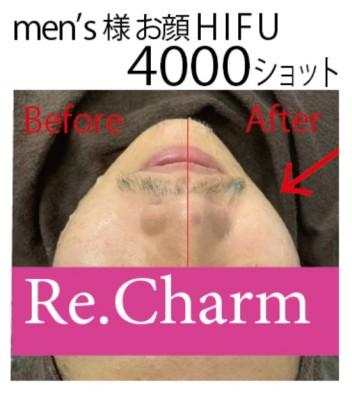 20191123men's小顔