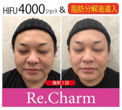 20200610 ペコちゃん顔脂肪溶解